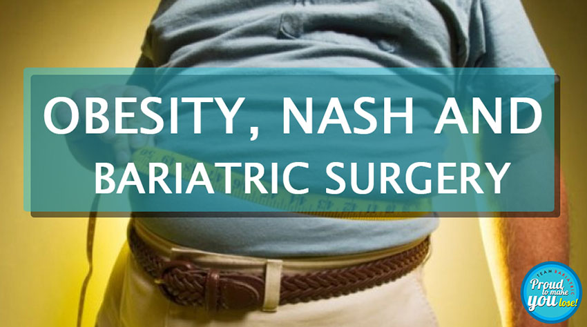 Obesity NASH and Bariatric surgery 1