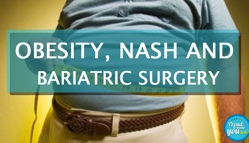 Obesity, NASH and Bariatric Surgery