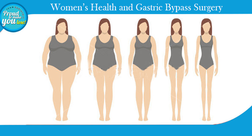 Women's Health and Gastric Bypass Surgery