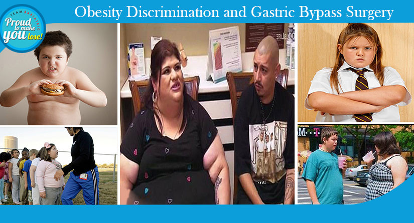 Obesity Discrimination and Gastric Bypass Surgery