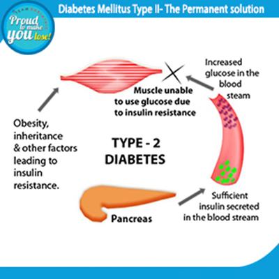Diabetes Mellitus Type 2 - The Permanent solution 1