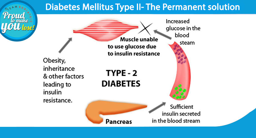 Diabetes Mellitus Type II- The Permanent solution