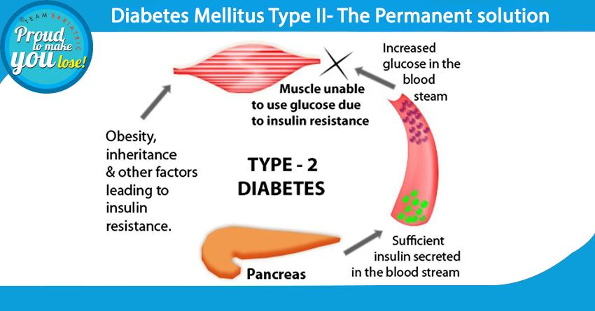 Image result for diabetes mellitus type 2