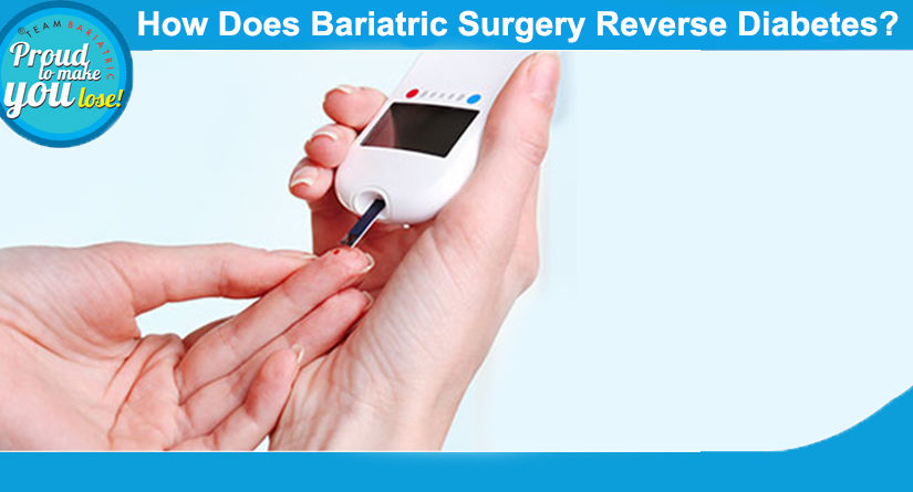 How Does Bariatric Surgery Reverse Diabetes?