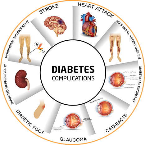 Metabolic Surgery for Diabetes