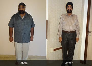 Mr. Amarjeet Singh by Dr. Atul Peters