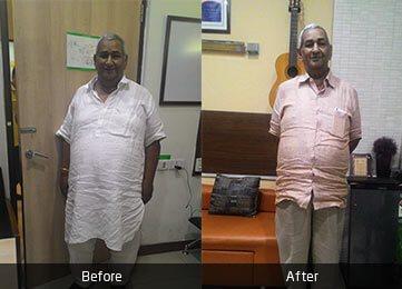 Mr. Suresh Kumar Bhanot by Dr. Atul Peters