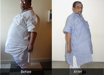 Mr. Amit Garg by Dr. Atul Peters