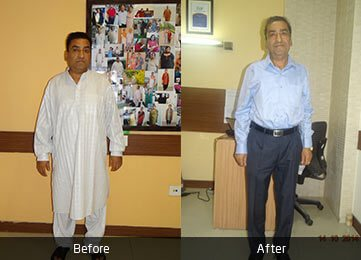 Mr. Joginder Narang by Dr. Atul Peters