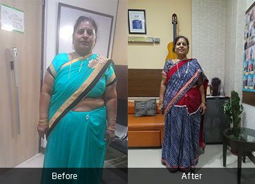 Mrs. Usha Bansal by Dr. Atul Peters